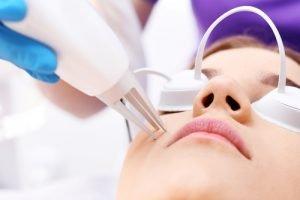 Aknenarben kann man mit verschiedenen Methoden zu Leibe rücken
