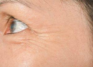Kraehenfuesse mit Botox oder Hyaluron behandeln natürliche Mittel