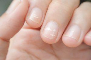 Weiße Flecken auf Fingernägeln