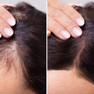 Haarausfall bei Männern und Frauen: Unterschiedliche Ursachen