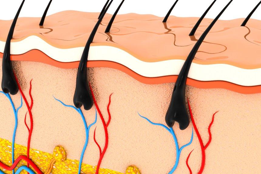 Haarausfall beginnt oft mit einer Entzündung der Haarwurzeln